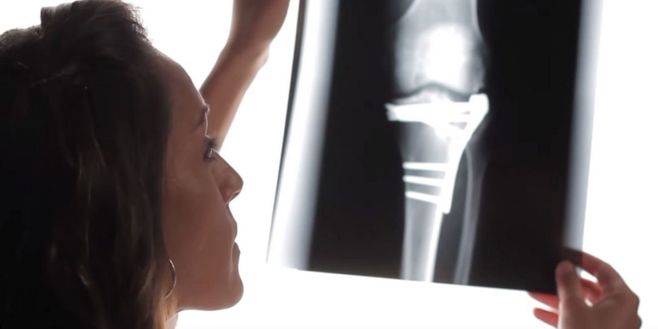 WATCH: Israel performs first knee replacement using CORAL-BASED implant that regrows cartilage