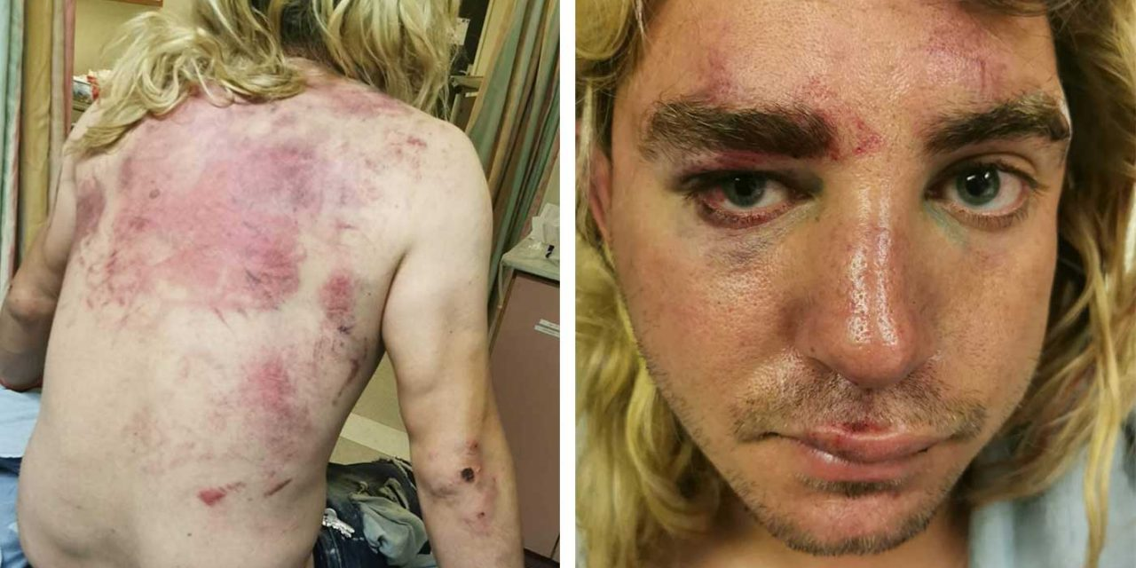 Israeli dogwalker attacked by Palestinian mob during Jerusalem riots