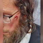 Jewish man assaulted by anti-Semitic mob in Jerusalem