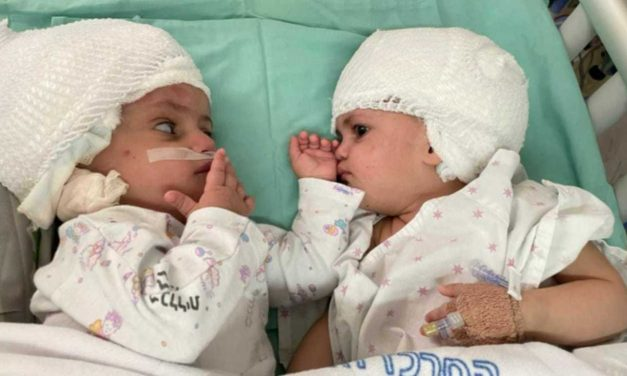 Israeli first as conjoined twins separated in 12-hour surgery led by British surgeon